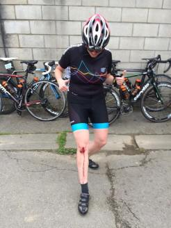 L2P2016: a minor accident